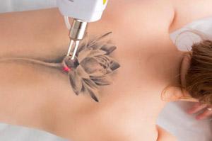 Laserowe Usuwanie Tatuażu Cena Mediskin Bydgoszcz